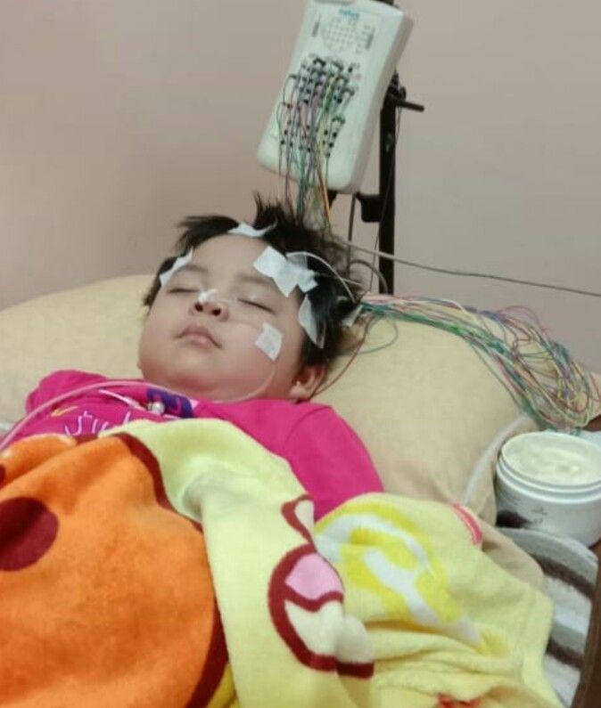 Tak Miliki Biaya, Alisha Anak Penderita Radang Otak, Butuh Uluran Tangan