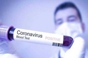 Update Covid-19 di Jambi Hari Ini, Bertambah 1 pasien Positif dan 1 Sembuh