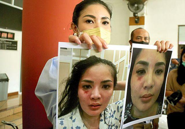 Nindy Siap Diperiksa Penyidik Usai Suaminya Jadi Tersangka KDRT